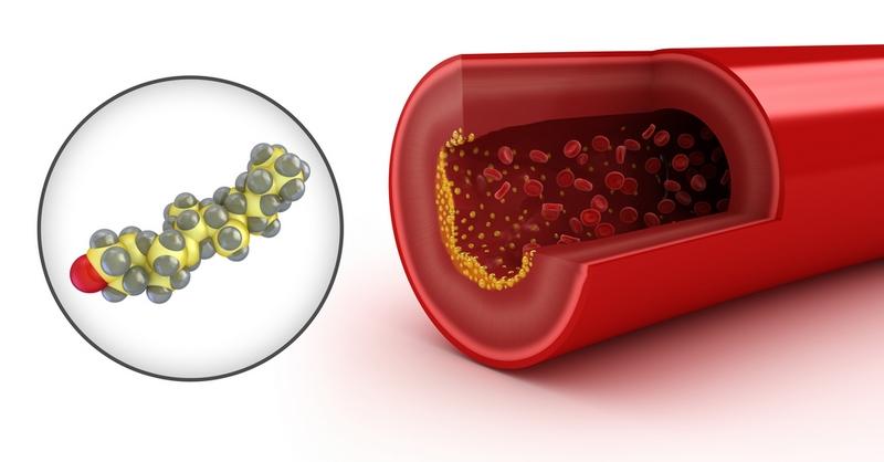 7 Buah Penurun Kolesterol Tinggi Secara Cepat